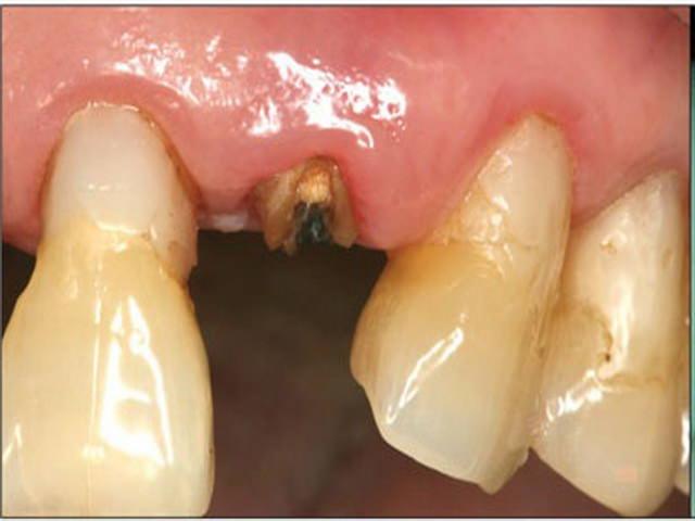 Остаток зубного корня в десне