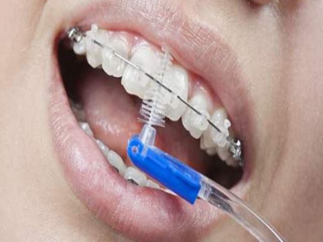 чистить зубы с брекетами