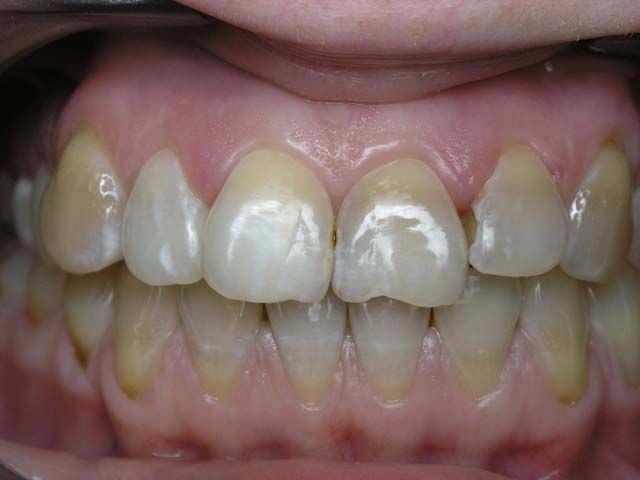 Пятна на зубах