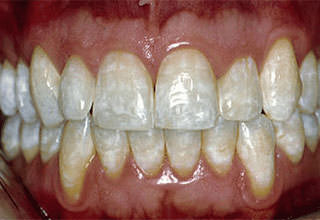 Флюороз зубов это