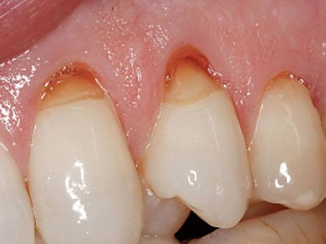 слишком чувствительные зубы
