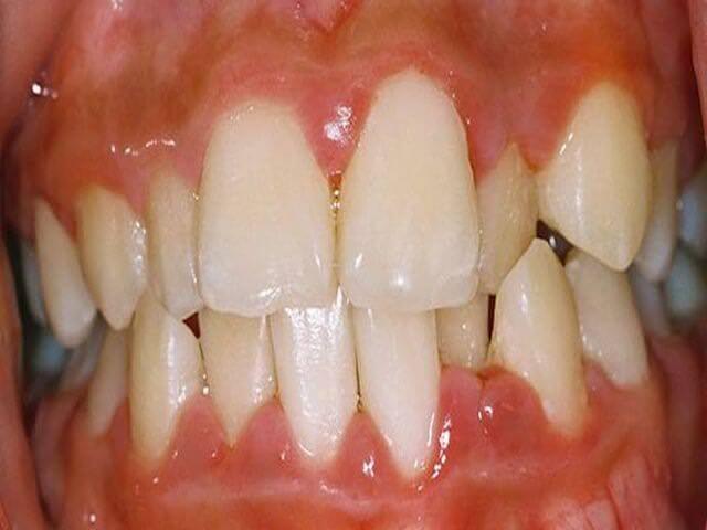смещение нижней челюсти