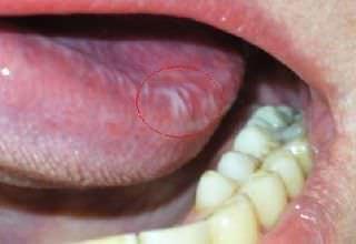 Лейкоплакия полости рта - веррукозная, мягкая, плоская лейкоплакия слизистой оболочки - симптомы и лечение