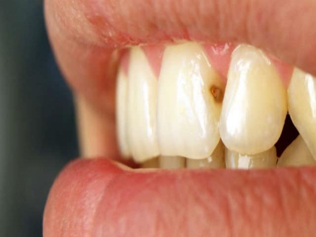 пораженный кариесом зуб