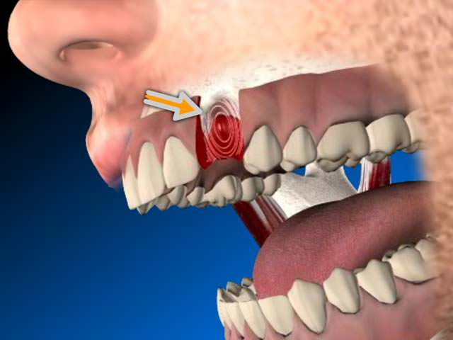 Кровь из зуба
