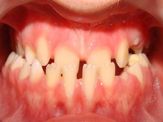 некрасивые зубы