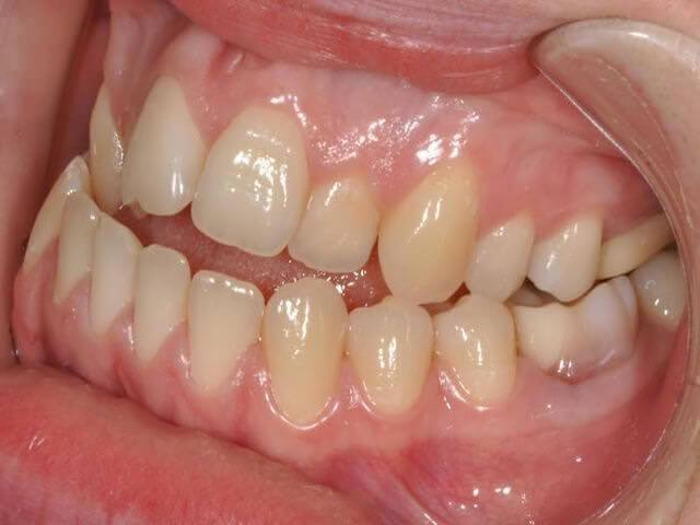 расположение зубов неправильное
