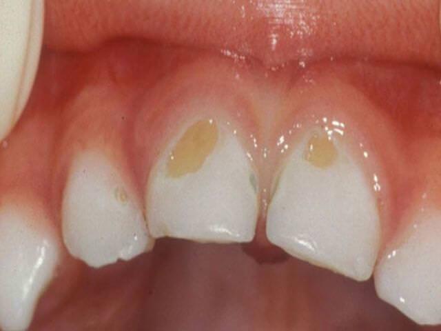 как снять налет на зубах
