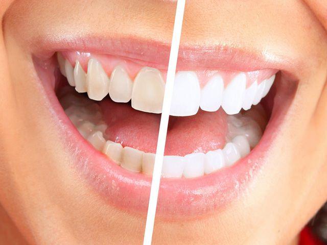 Отбеленные зубы выглядят более эстетично