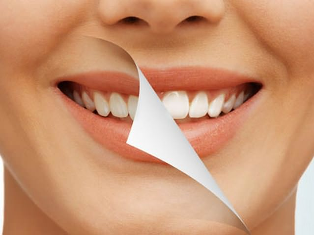 Crest 3d white whitestrips with professional effects