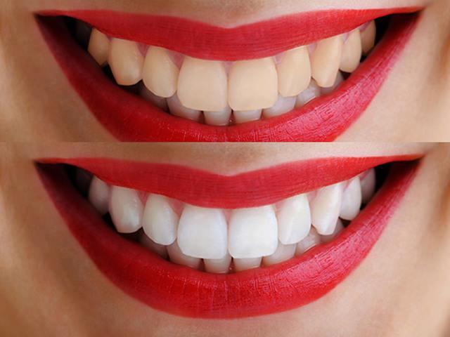Разница между обычными зубами и зубами, которые отбелили