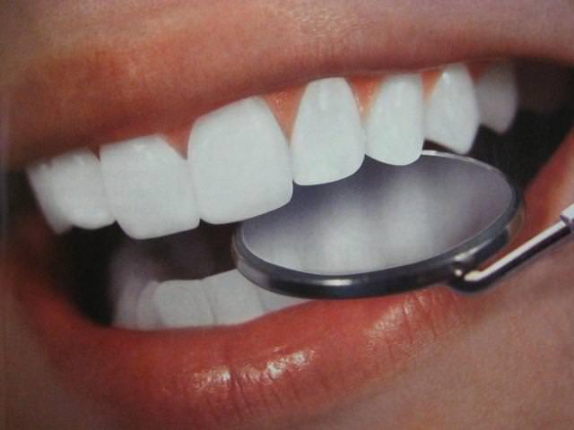 Врач сможет определить причину потемнения эмали и очистить зубы