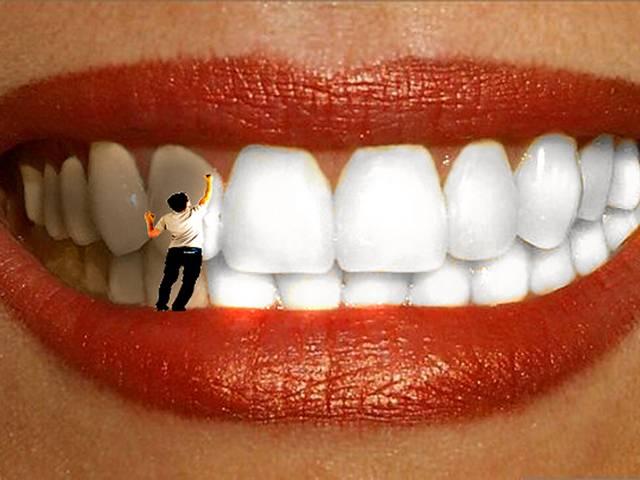 Изменение цвета зубов может быть вызвано различными причинами