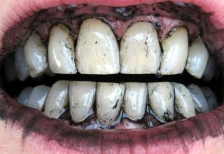 Активируемый уголь для отбеливания зубов