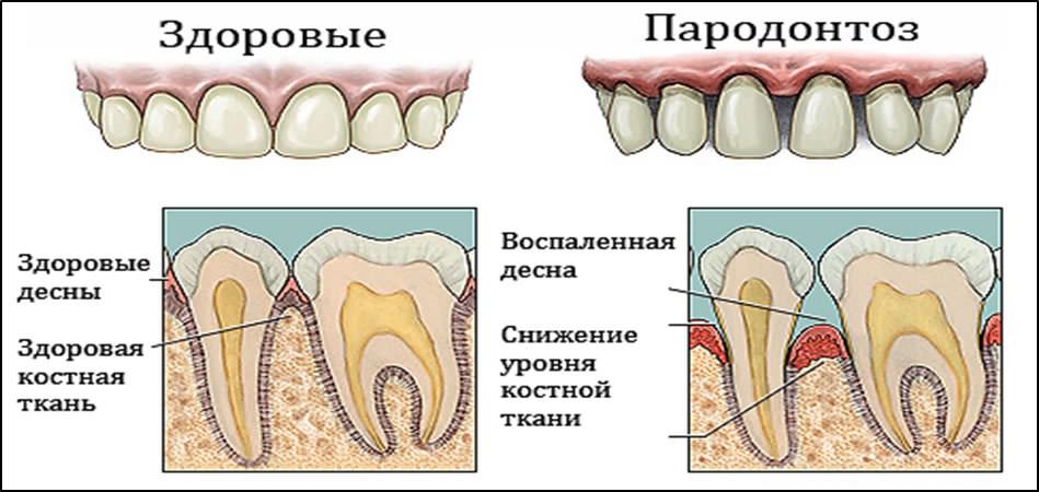 Что такое пародонтоз зубов лечение