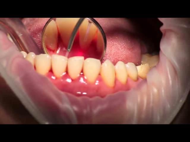 Вскрытие корня зуба