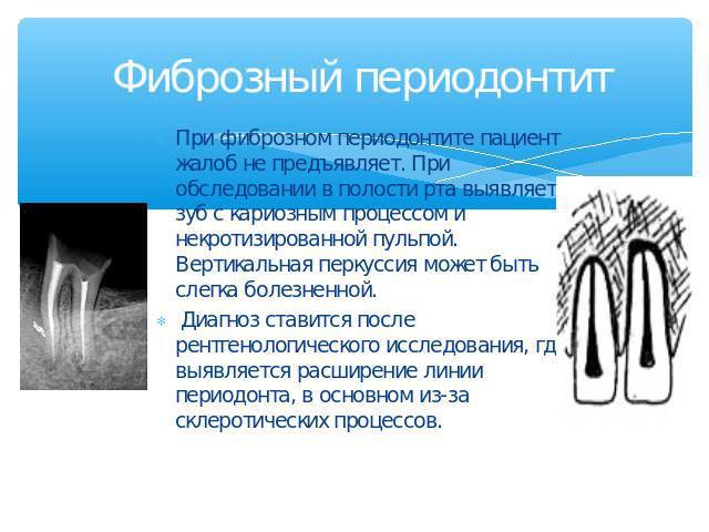 Фиброзный периодонтит