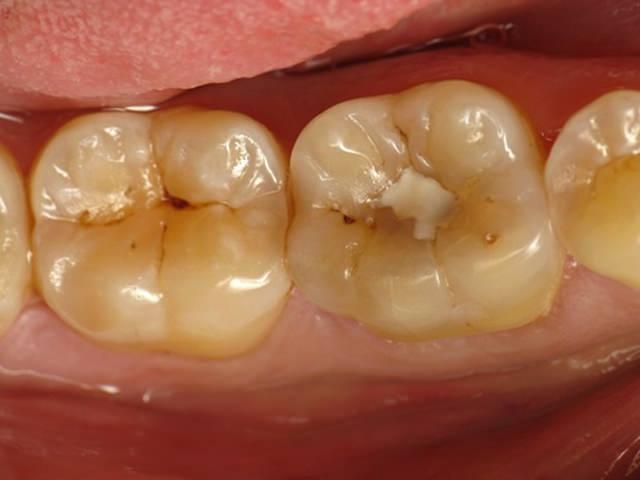 Кариес на зубах уже запломбированных ранее
