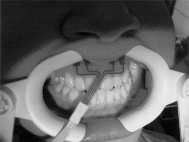 Лечение парадонтоза с помощью хирургии