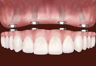 Современные методы протезирования зубов фото