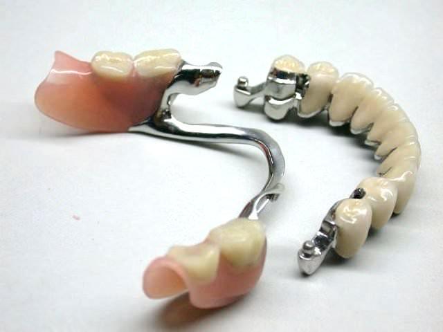Протезирование при отсутствии целого ряда зубов