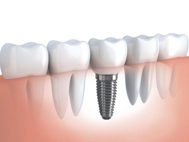 Пример установки протеза в ряд к здоровым зубам