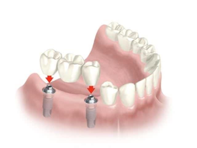 Зубное протезирование - схема установки имплантантов