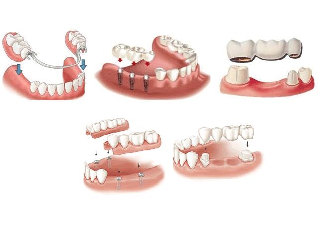 Различные виды протезирования зубов