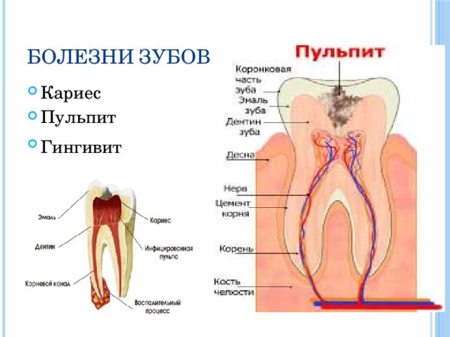 Болезни зубов
