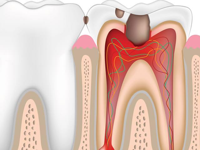 Схематичное изображение зуба с пульпитом