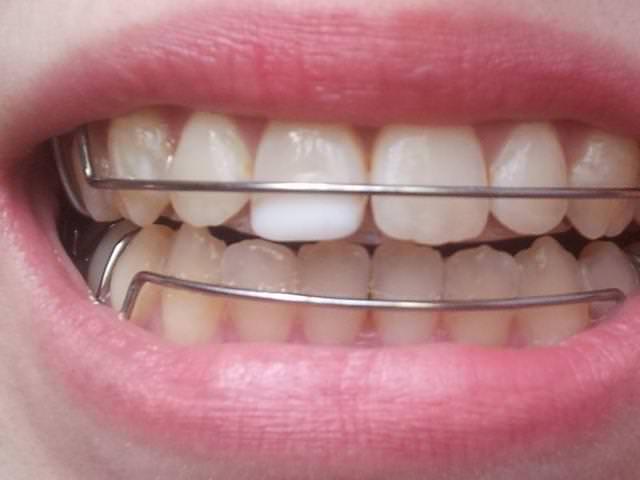 Человеческие зубы с установленными ретейнерами