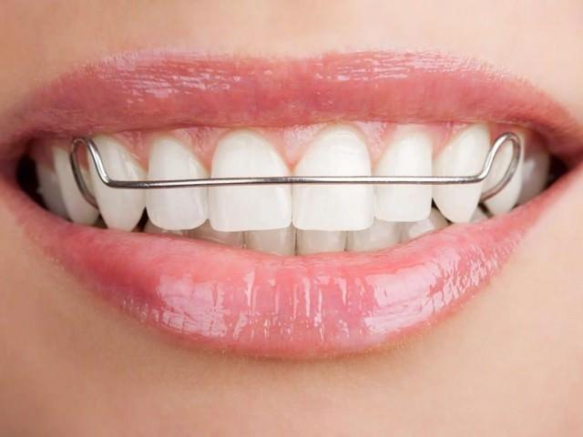 Зубы с утановленным ретейнером из металла