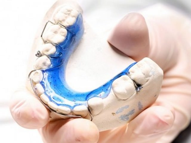 Съемный ретейнер для части зубов