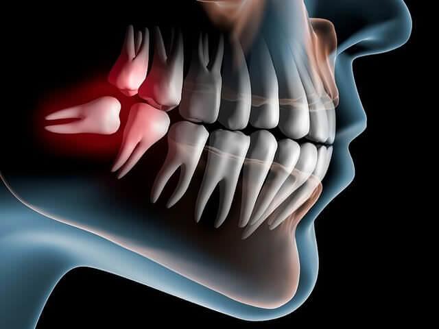 Схематичное изображение челюсти с ретинированным (дистопированного) зубом