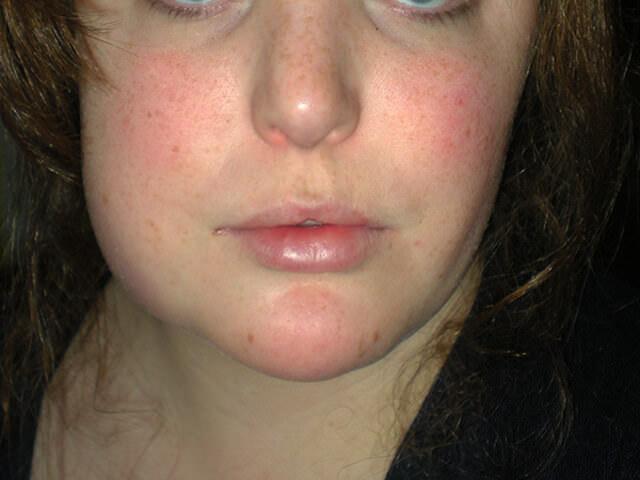 Девушка с отеком лица