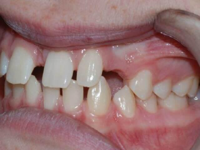 Ротовая полость после удаления ретинированного зуба