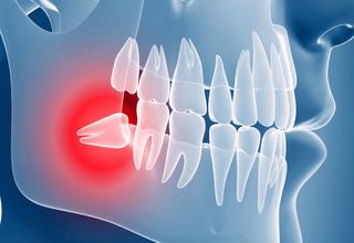 Что значит ретинированный зуб - 32Дента