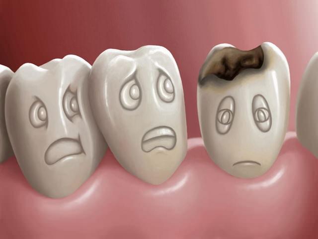 Лечение кариеса: современные методы в стоматологии