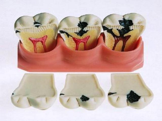 Средним кариесом принято называть процесс кариозного повреждения зуба