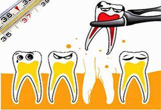 Температура после удаления зуба (в том числе мудрости и молочного у ребенка): что делать