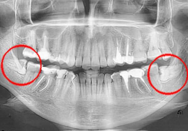 Ретинированный зуб рентген