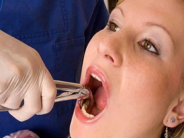 удаление зуба у взрослого