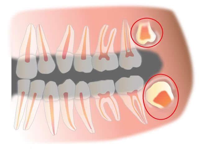 как быстро удалить зуб