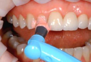 Можно ли делать профессиональную чистку зубов беременным?