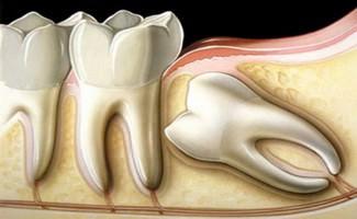 Что делать после удаления зуба мудрости (фото и видео)