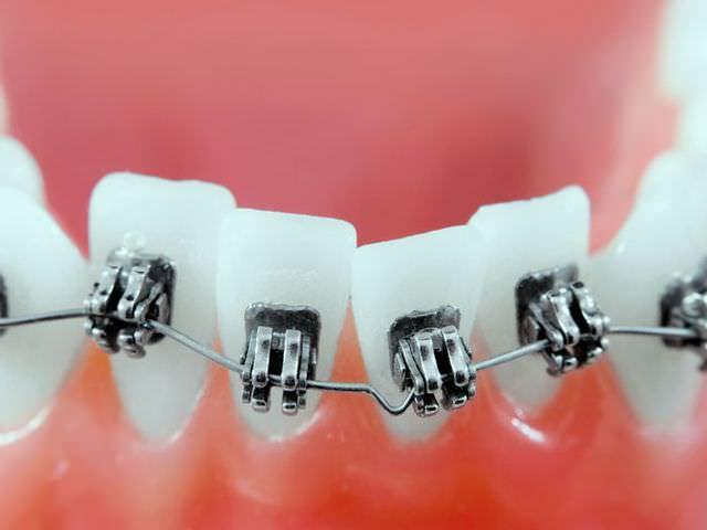 выравнивание зубов лигатурными брекетами