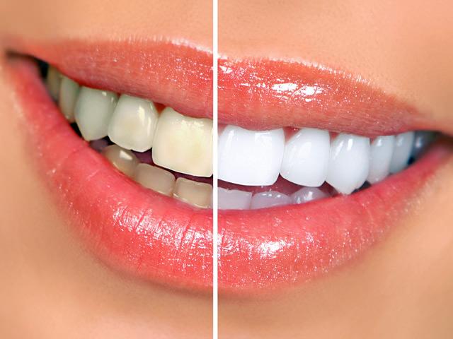 Разница между здоровыми зубами и нет