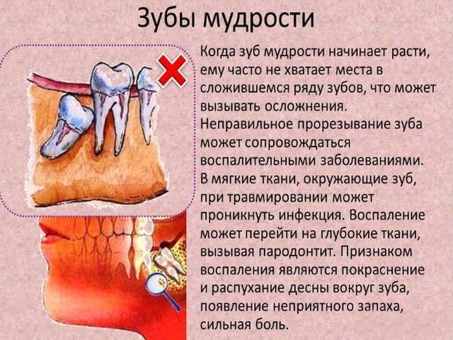 Аномалии развития зуба мудрости