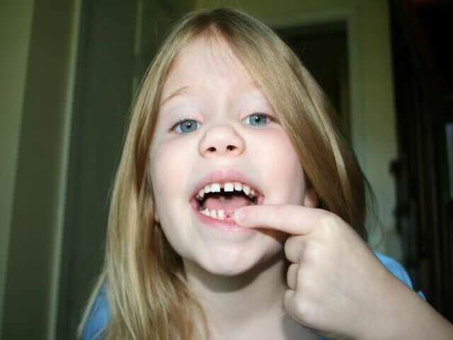 безболезненное удаление зуба