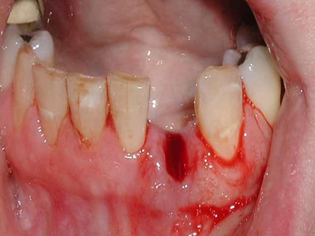 заживление зуба